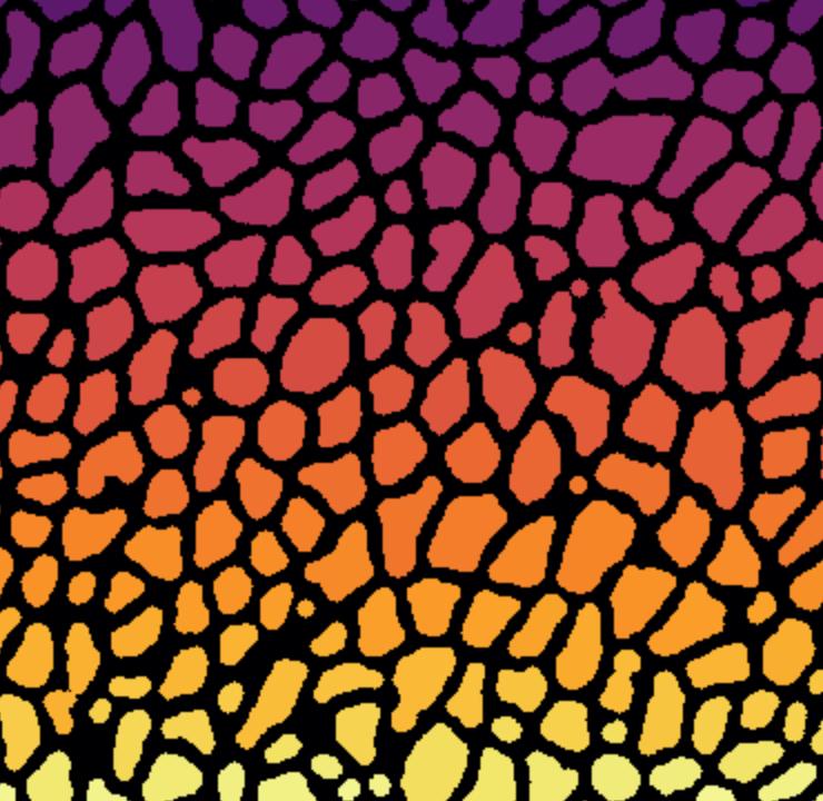 img/plasma-cells.png